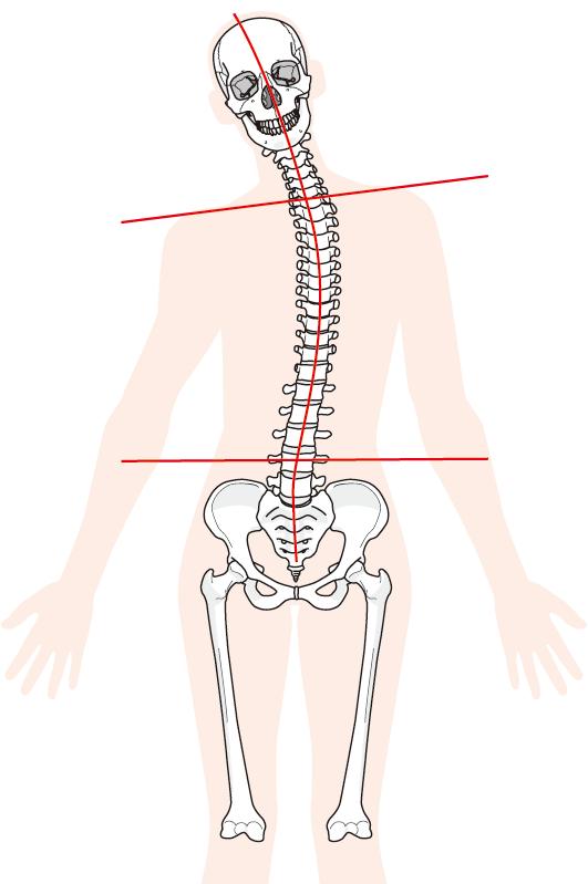 背骨のゆがみのイメージ