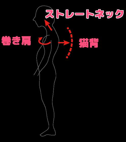 悪い姿勢のイメージ図
