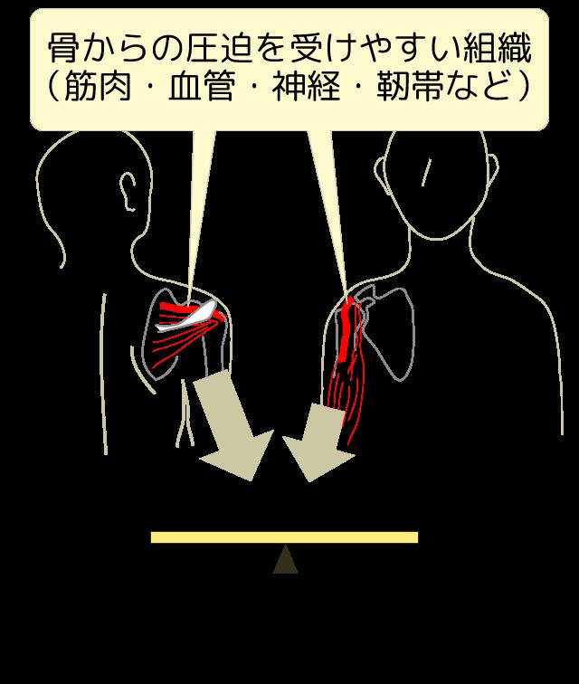骨からの圧迫を受けやすい組織を、鋭い支点で支えられた割り箸にたとえる図