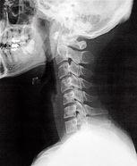 ストレートネックのレントゲン写真のイメージ