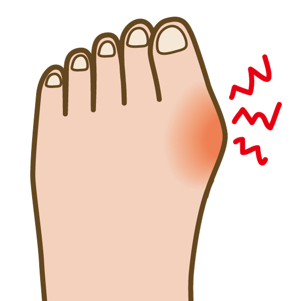 外反母趾で痛くなりやすいところの図