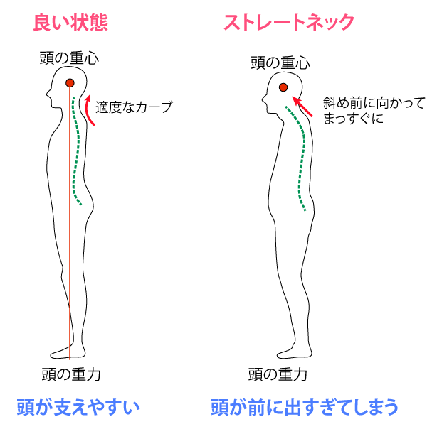 ストレートネックにおける、背骨のラインの特徴
