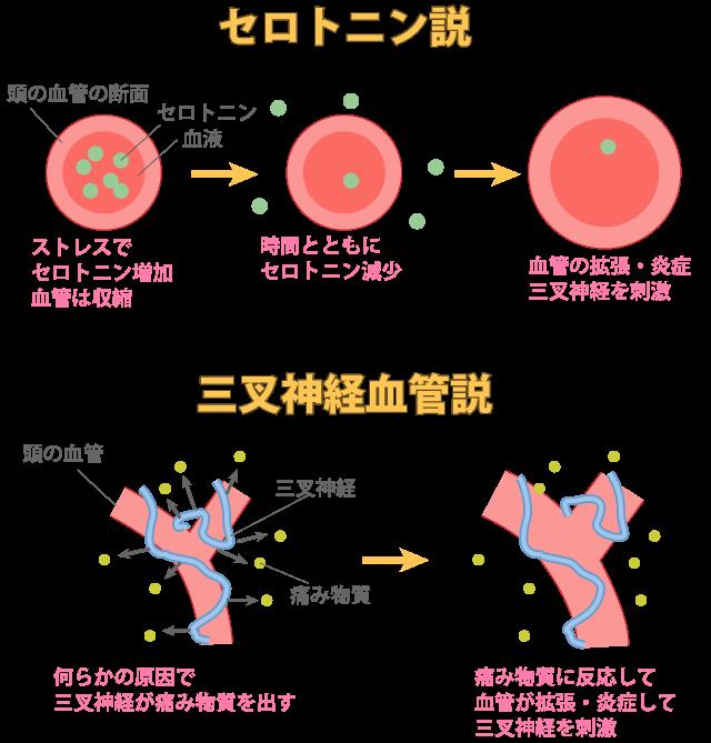 三叉神経の原因と考えられる2つの説の図解