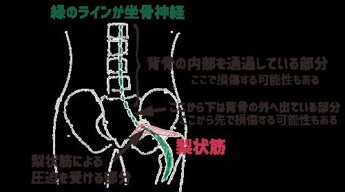 梨状筋による坐骨神経の圧迫