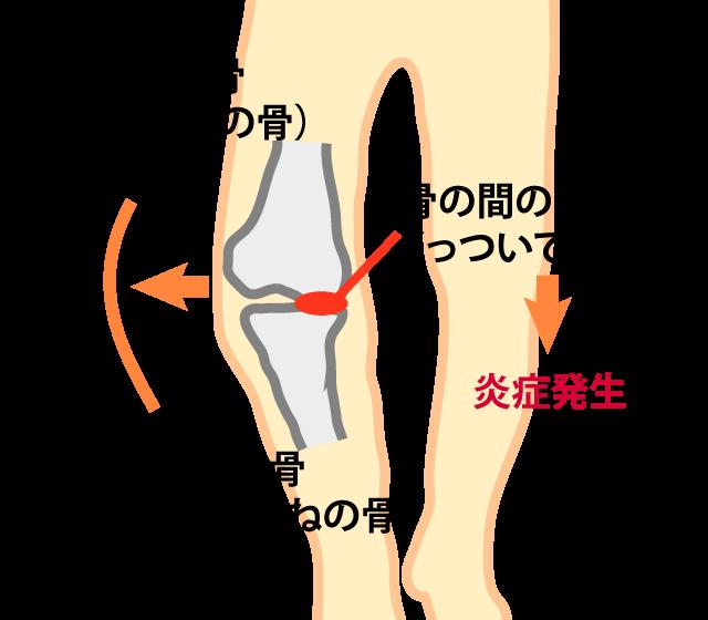 変形性膝関節症において、炎症を発生する場所を示した図