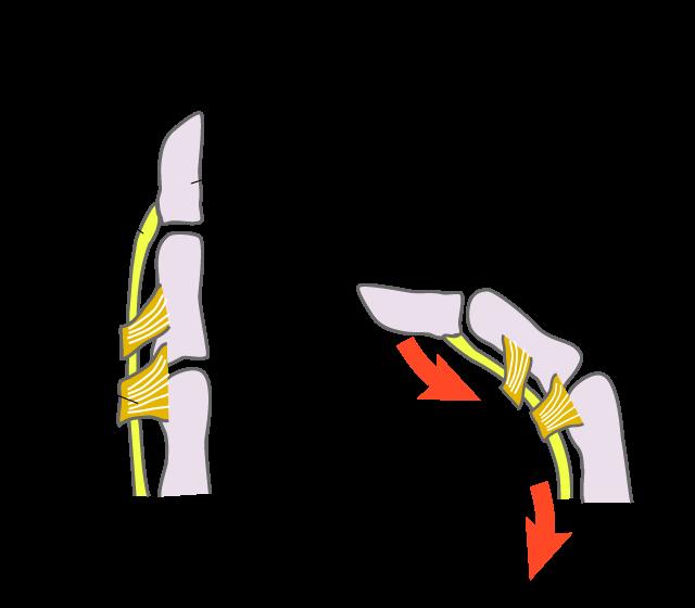 腱が指を動かす仕組み