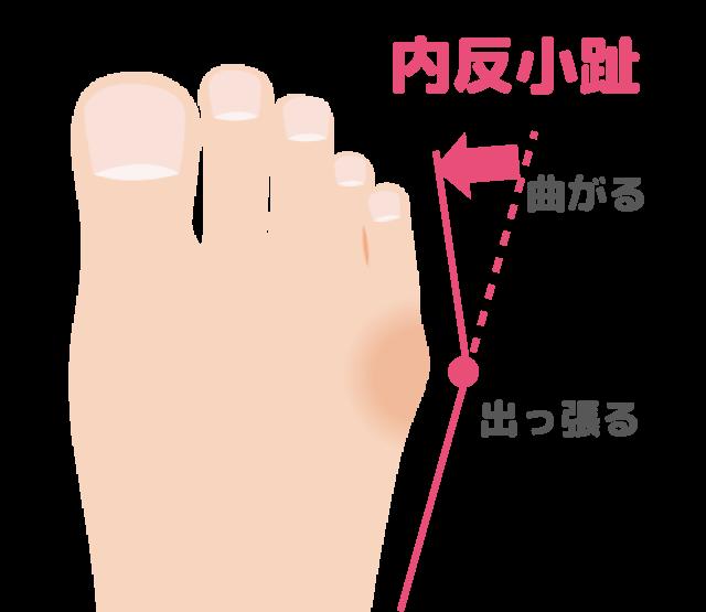 内反小趾の図