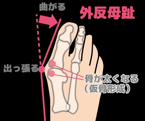 外反母趾の形状の特徴をあらわした図